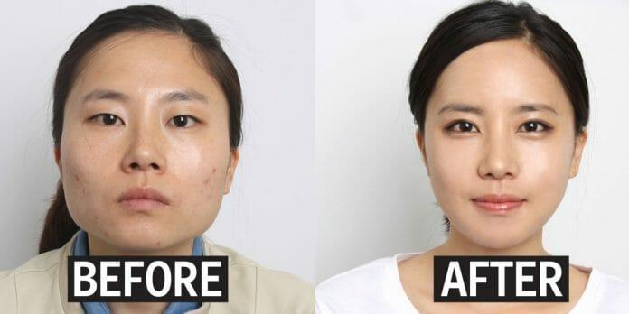 Antes E Depois, Exemplo De Cirurgia Plástica